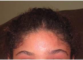 Forehead 2-20-13
