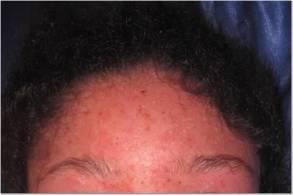 Forehead 4-8-13