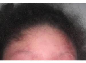 Forehead 7-27-13