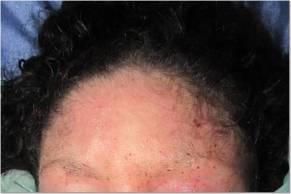 Forehead 10-18-13