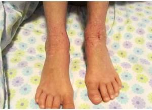 Feet 1-10-14