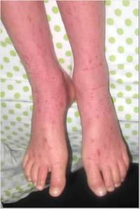 Feet 5-7-13