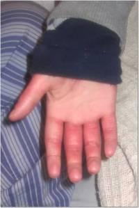Fingers 5-12-13