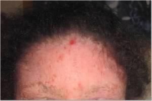Forehead 5-11-13
