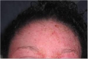 Forehead 5-2-13
