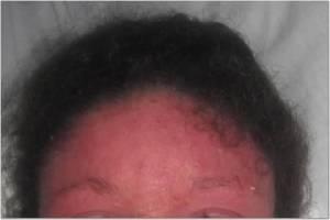 Forehead 5-5-13