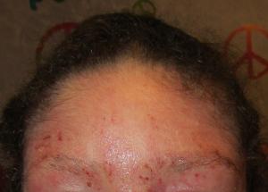 Forehead 12-6-13