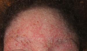 Forehead 12-8-13