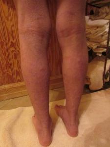 Back of Legs 12-12-13