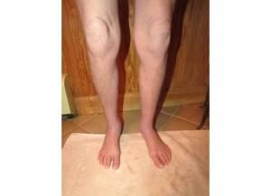 Legs 11-1-13