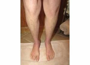 Legs 11-9-13
