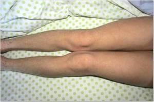 Legs 12-31-13