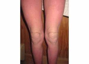 Legs 4-12-13