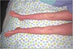 Legs 5-17013