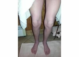 Legs 9-8-13