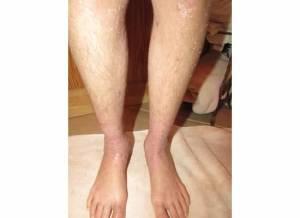 Lower Legs 12-8-13