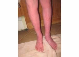 Lower Legs 5-21-13