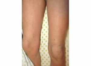 Thighs 11-15-13