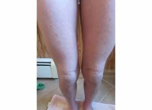 Thighs 11-9-13