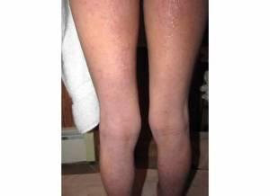 Back of Legs 1-28-14