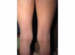 Back of Legs 2-11-14