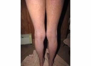 Back of Legs 2-5-14
