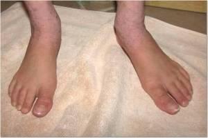 Feet 1-28-14