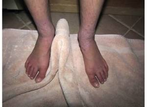 Feet 2-8-14