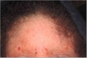 Forehead 6-22-13