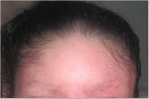 Forehead 7-21-13