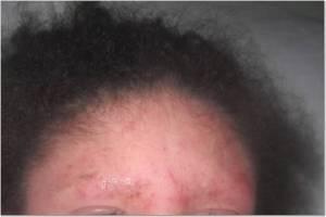 Forehead 7-6-13