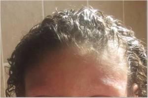 Forehead 8-15-13
