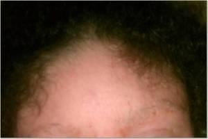 Forehead 8-30-13