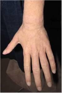 Hand 2-5-14 2