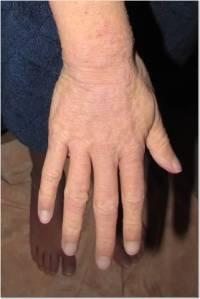 Hand 2-5-14