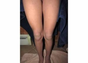 Legs 2-11-14