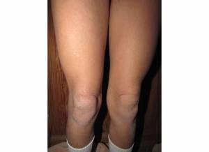 Legs 2-21-14