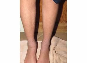 Legs 2-8-14