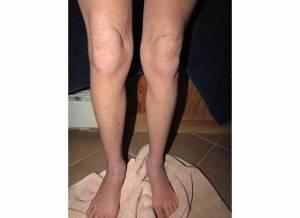 Lower Legs 2-5-14