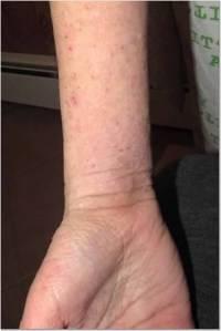 Wrist 1-28-14